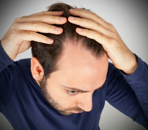 photo-of-man-suffering-hair-loss